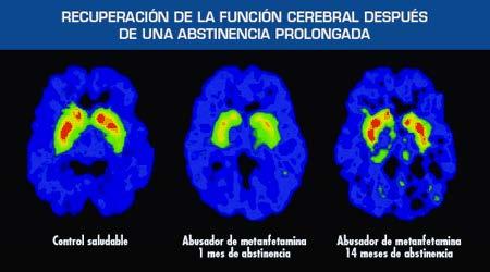 LA DROGODEPENDENCIA Y NEUROBIOLOGIA II