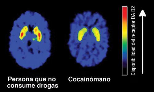 LA DROGODEPENDENCIA Y NEUROBIOLOGIA